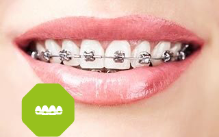 http://www.centrodentaletolmezzo.it/wp-content/uploads/2015/11/ortodonzia1-320x200.png