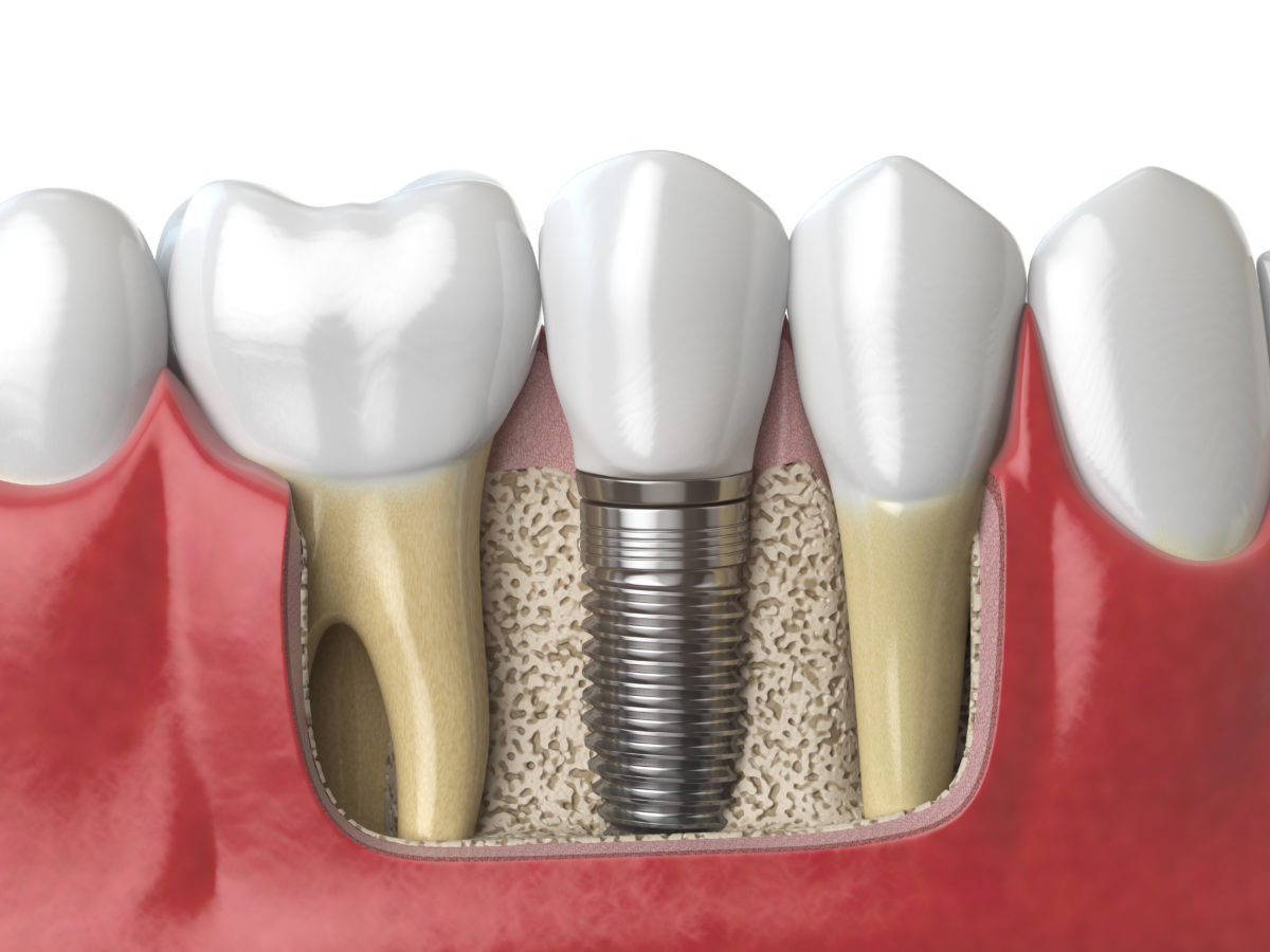 anatomy-of-healthy-teeth-and-tooth-dental-implant-PAF6ZMW-1200x900.jpg